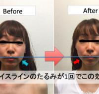 「五行理論×筋膜リリースエステ」融合の美容矯正(小顔